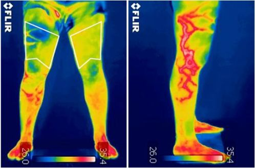 "New JCR paper ""Infrared Thermography as a Support Tool for Screening and Early Diagnosis in Emergencies"""