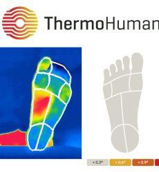 Mejoras deep learning en el software ThermoHuman