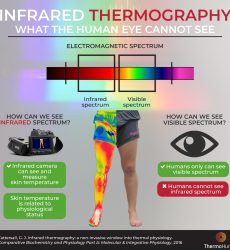 Infrared thermography. What the human eye cannot see
