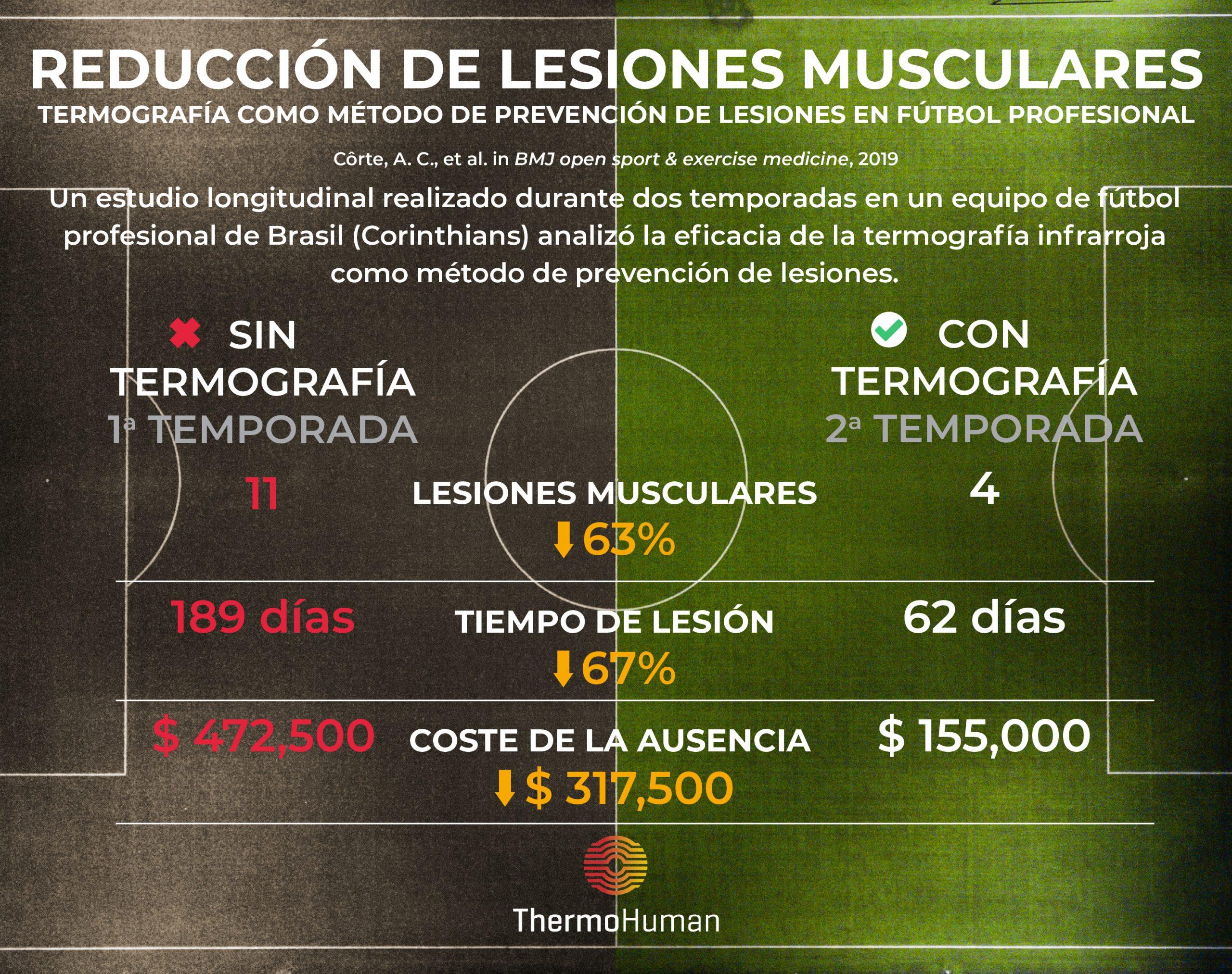 Termografía como método de prevención de lesiones en fútbol profesional