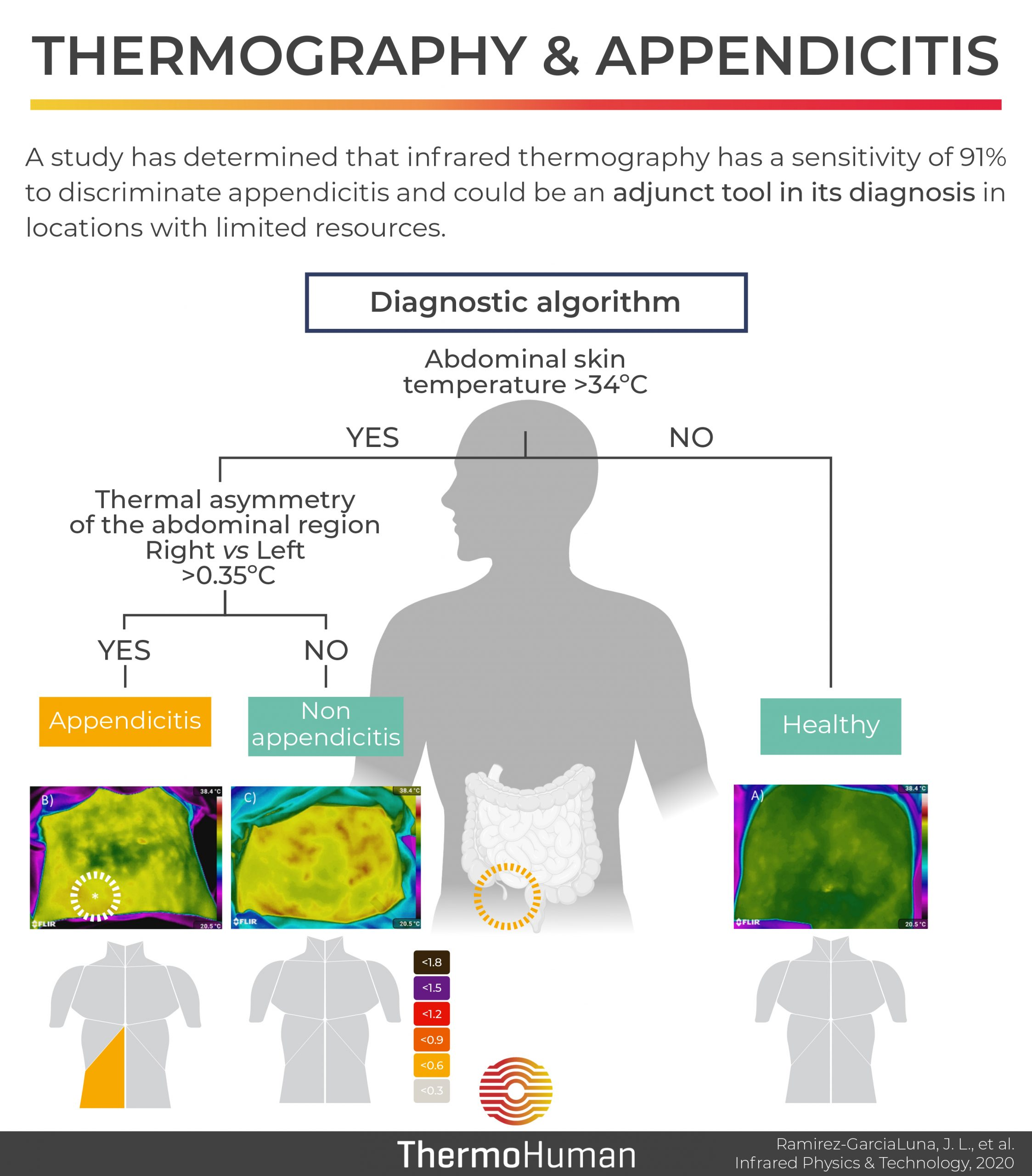 Thermography and diagnosis of appendicitis
