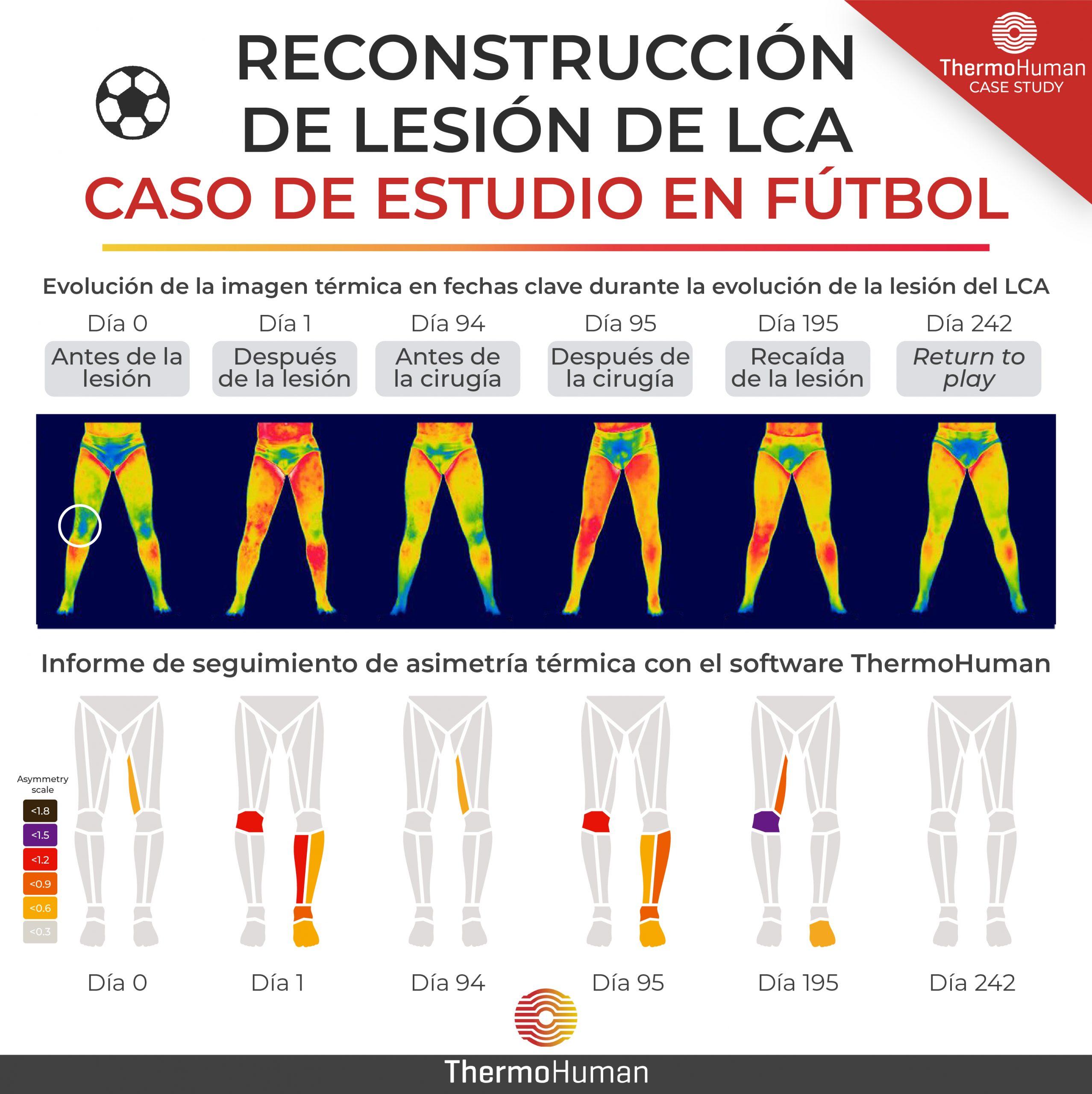 Antes, durante y despues de una lesión de ligamento cruzado anterior (LCA): estudio de caso con termografía