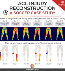 Before, during and after an ACL injury: a case study using thermography
