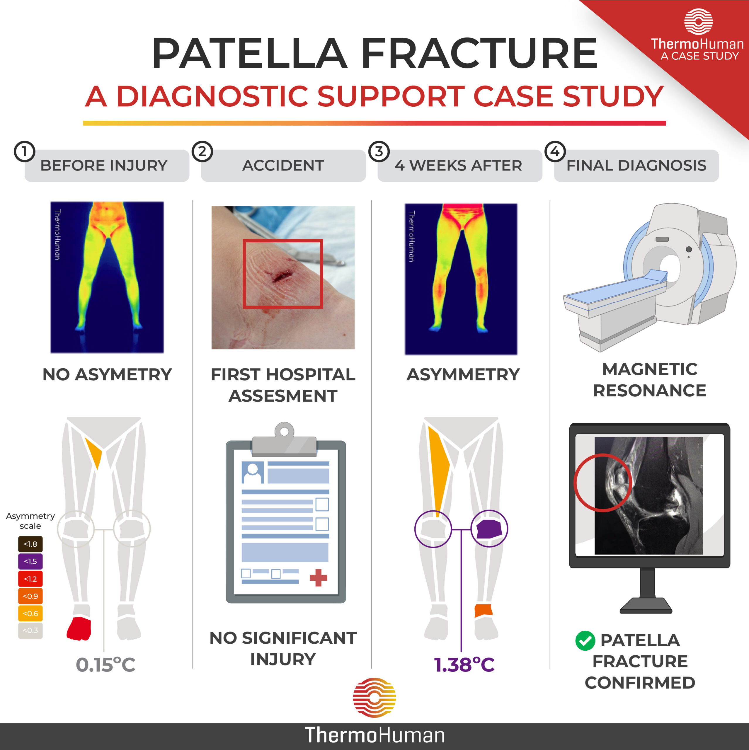 Thermography as a diagnostic support tool in a patella fracture: a case study