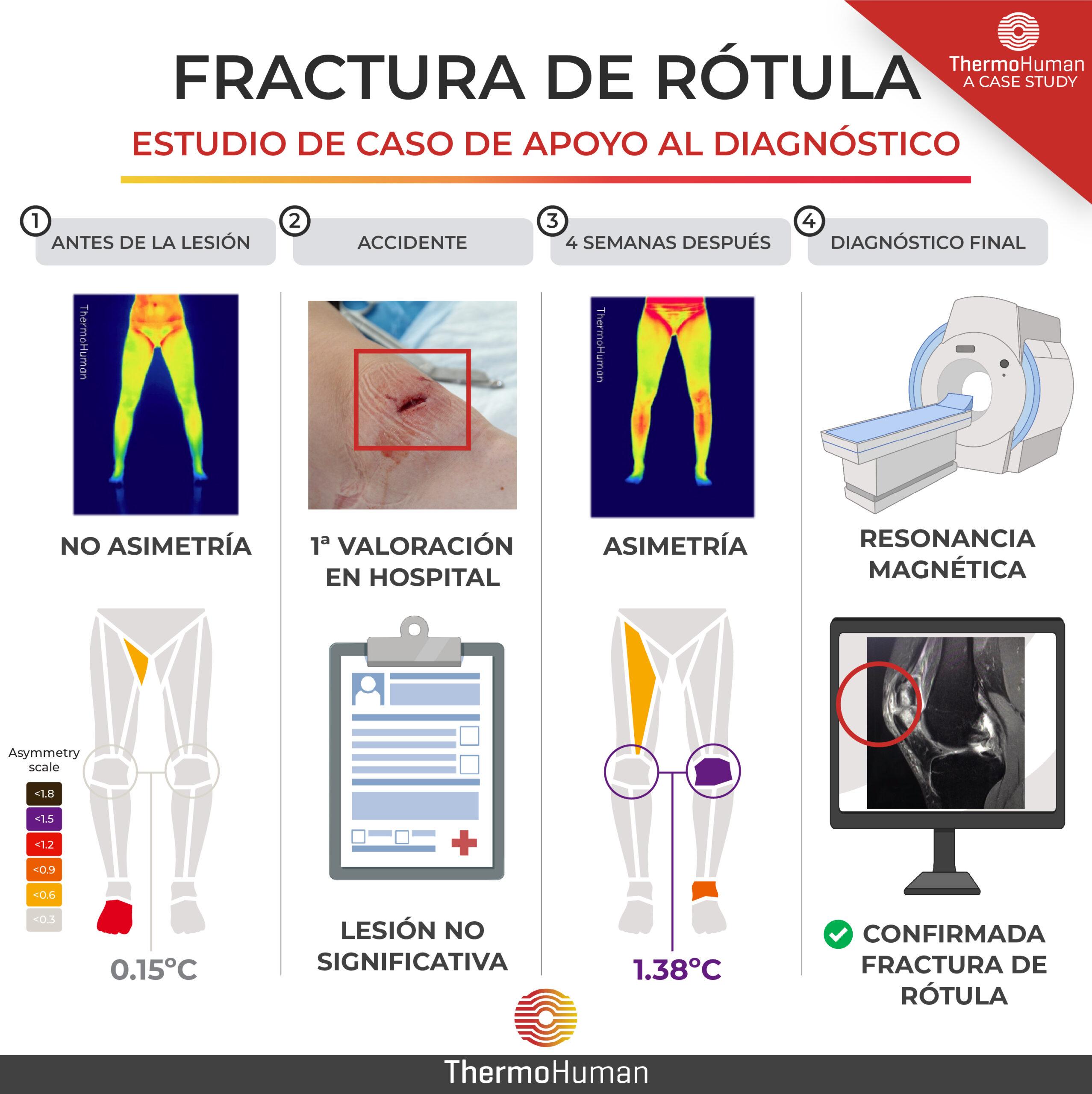 Estudio de caso sobre una fractura de rótula: termografía como ayuda al diagnóstico