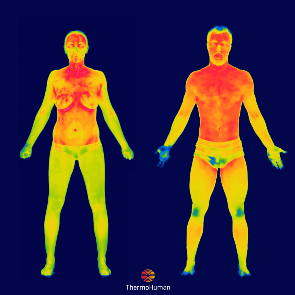 ThermoHuman_woman_man_gender_thermography
