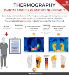 Plantar fasciitis vs Baxter's neuropathy: a thermography case study
