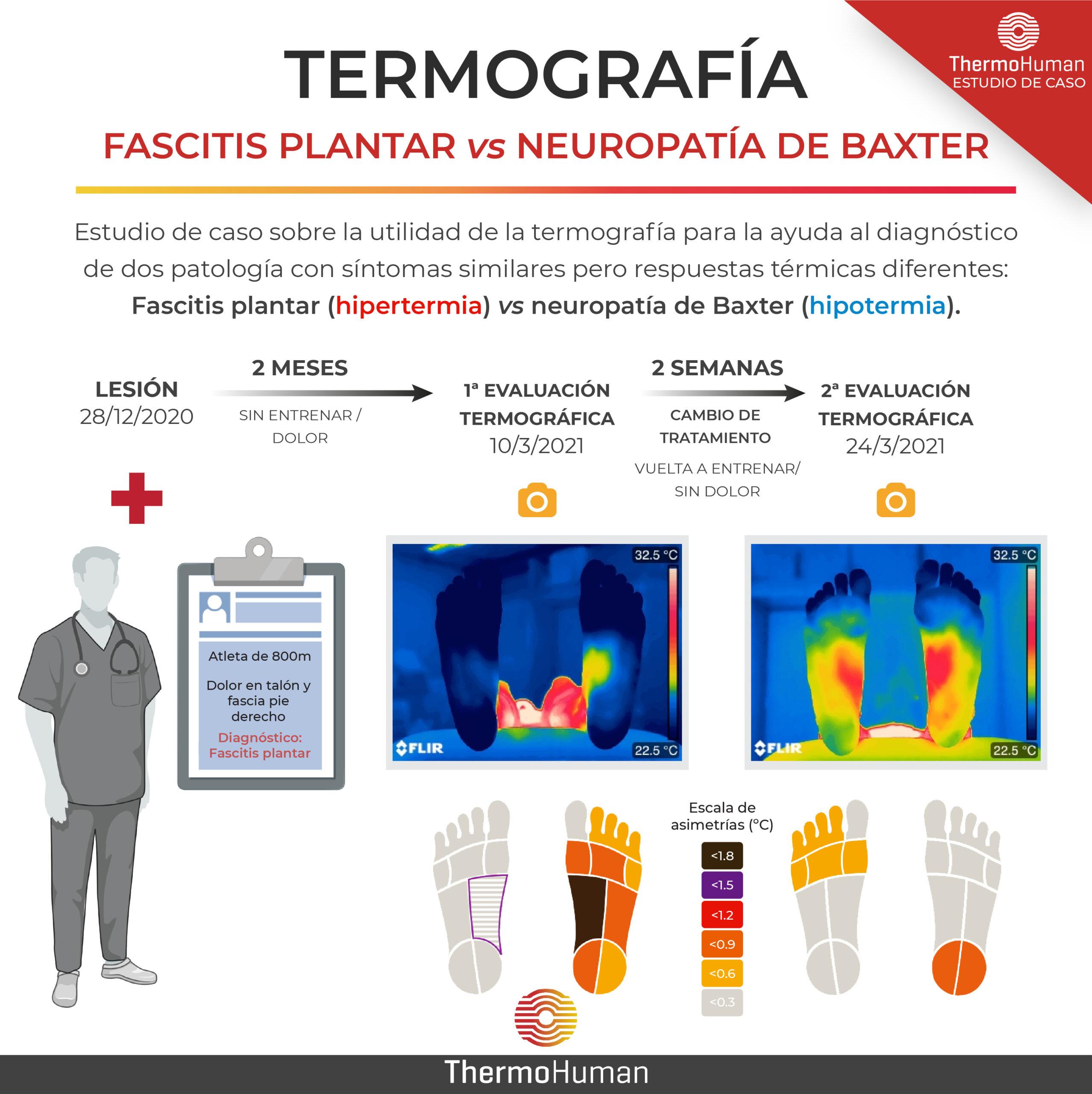 Fascitis plantar vs Neuropatia de Baxter: estudio de caso con termografía