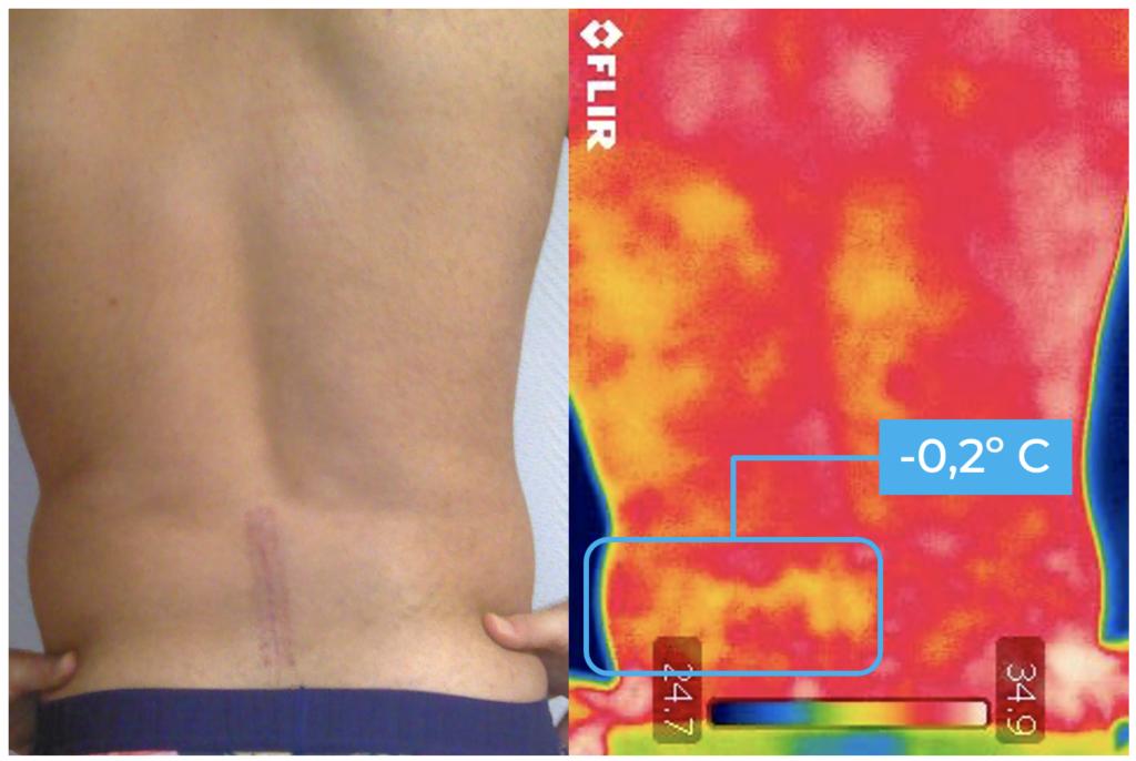 Figura 1: paciente de microdiscectomía lumbar abierta a las 8 semanas, vista con visión digital (izquierda) y térmica (derecha), donde podemos ver el recorrido de la raíz nerviosa más frío que el contralateral.