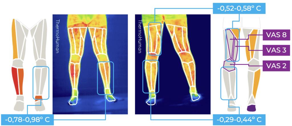 Figura 2: avatares y termogramas que muestran hipotermias en las regiones de hiposensibilidad e hipomotricidad. También EVA (Visual Analogue Scale) que muestra la percepción del dolor del paciente en la parte posterior de la pierna.