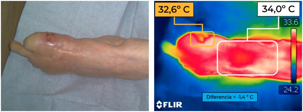 Imagen 2: izquierda: visión digital del pie, donde se aprecia una úlcera en el lateral interno. Derecha: valoración termográfica del pie, donde podemos observar la úlcera con una temperatura menor al resto del pie (-1,4º C).