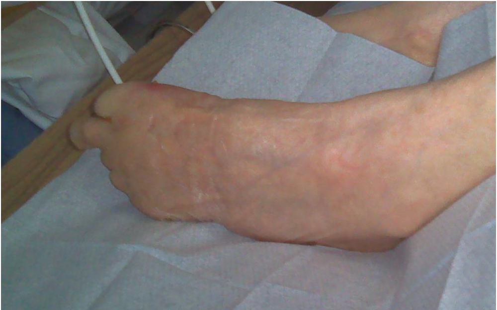 amputation thermography diabetes diabetic foot