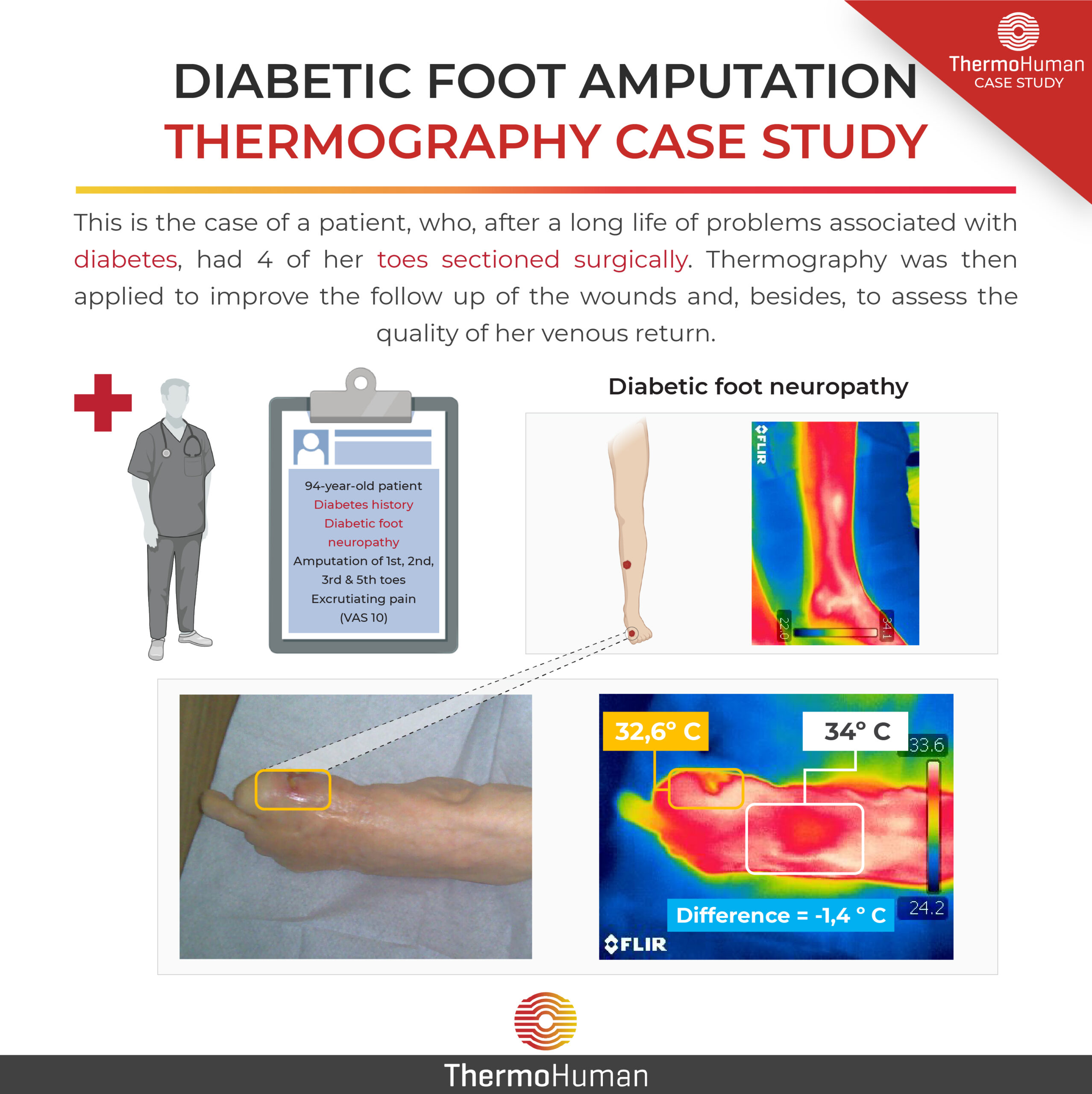 Diabetic foot amputation and thermography: study case