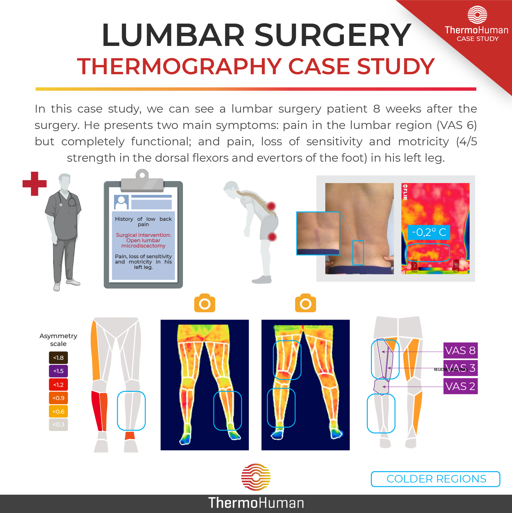 Lumbar surgery seen with thermography: Study case