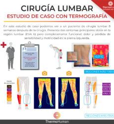 La cirugía lumbar vista con termografía: un estudio de caso