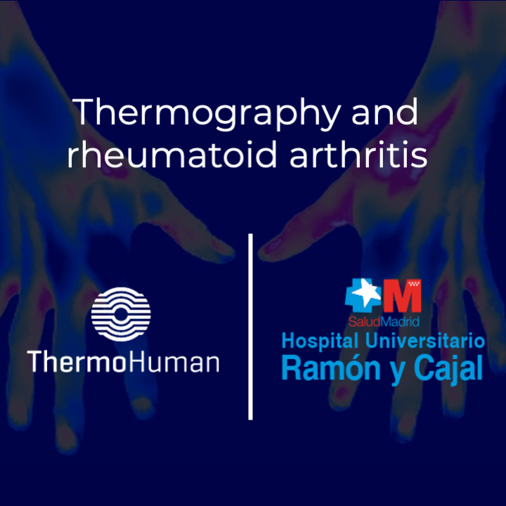 ThermoHuman and Hospital Ramón y Cajal develop project on thermography and rheumatoid arthritis