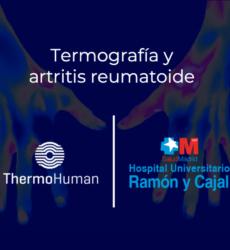 ThermoHuman y el Hospital Ramón y Cajal desarrollan proyecto sobre termografía y artritis reumatoide