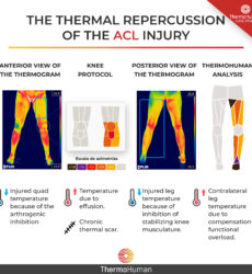 Anterior cruciate ligament (ACL) and thermography: a critical review of the scientific literature