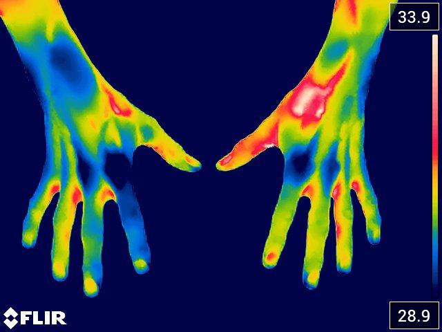 rheumatoid arthritis (artritis reumatoide)