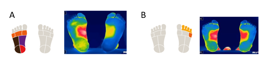 Specific analysis of ThermoHuman foot after two months of anterior cruciate ligament rehabilitation