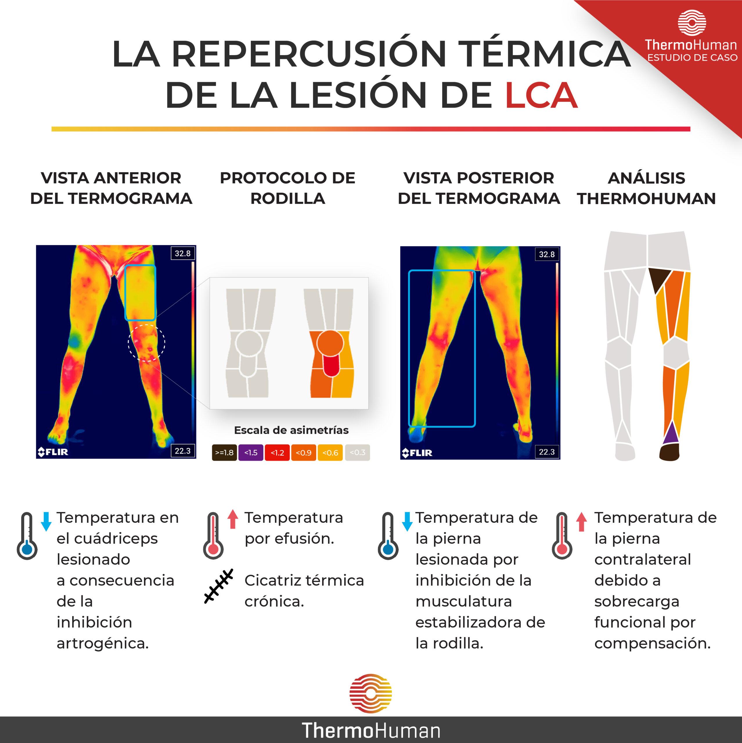 El ligamento cruzado anterior (LCA) y su evaluación con la termografía: una revisión crítica de la literatura científica
