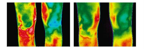 ligamento cruzado anterior y termografía evolución
