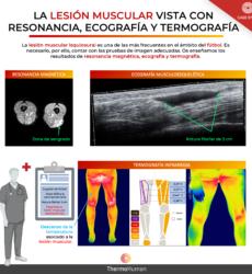 Resonancia, ecografía y termografía en la lesión muscular en el fútbol