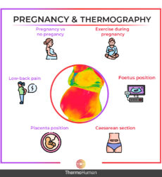 Applications of Thermography during Human Pregnancy